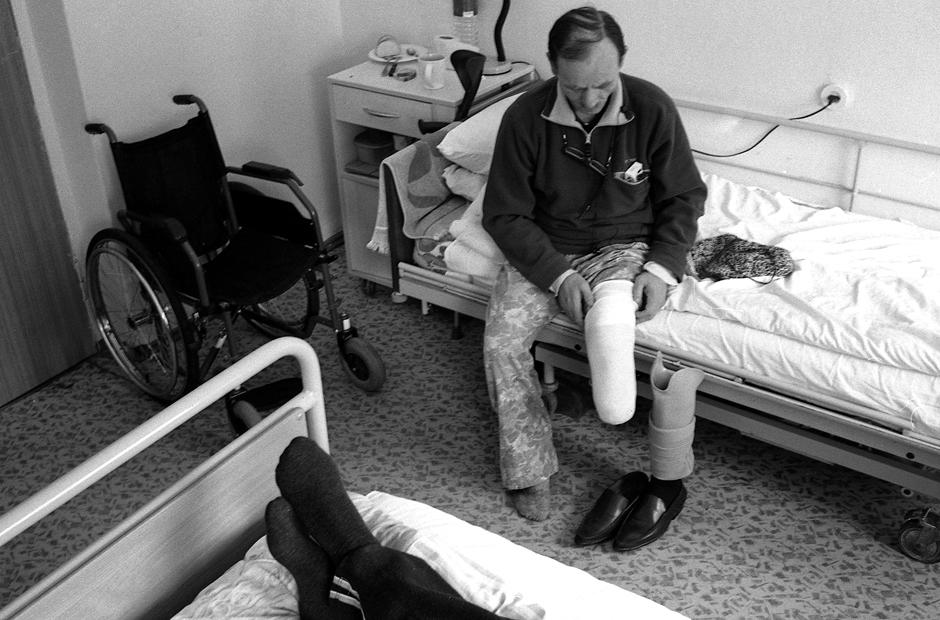 Protezą tenka dėtis atidžiai, nes netinkamai uždėtas jis koją pritrina iki žaizdų. © Darius Chmieliauskas